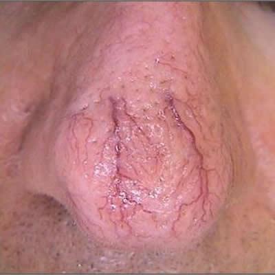 telangiectasia belladerma