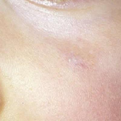 vascular lesion removal durban