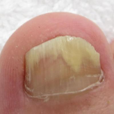 nail treatment durban