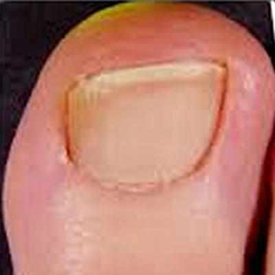 nail damage treatment