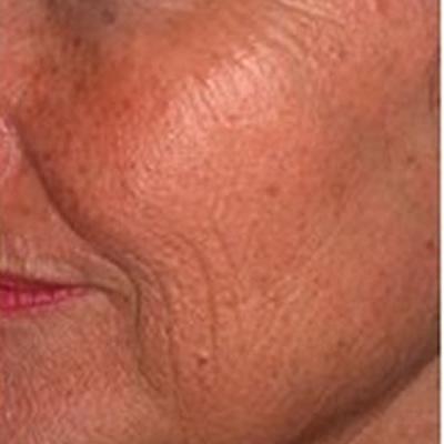 skin rejuventaion