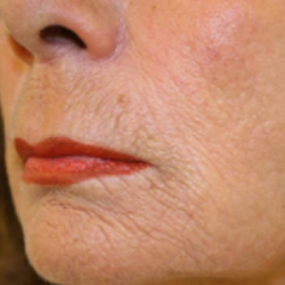 skin resurfacing treatment