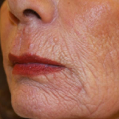 skin resurfacing durban