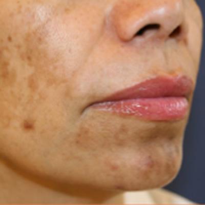 resurfacing skin